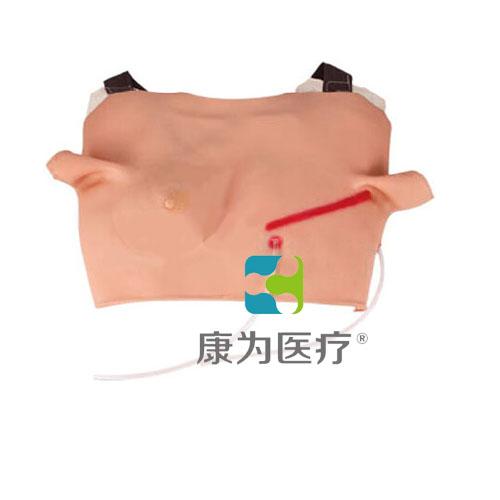 """""""康为医疗""""高级乳腺肿瘤检查诊断模型"""