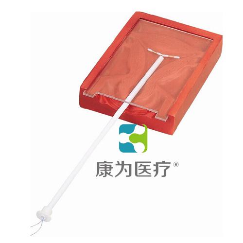 """""""万博体育app登陆医疗""""高级宫内避孕器训练模型"""