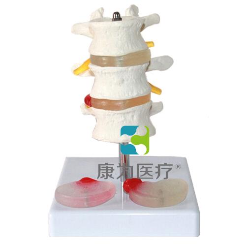 """""""万博体育app登陆医疗""""3节腰椎附2个病变椎间盘模型"""