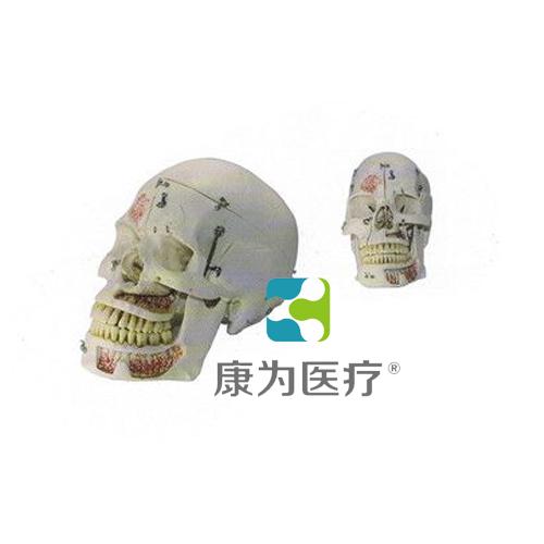 """""""康为医疗""""头颅模型带锁扣"""