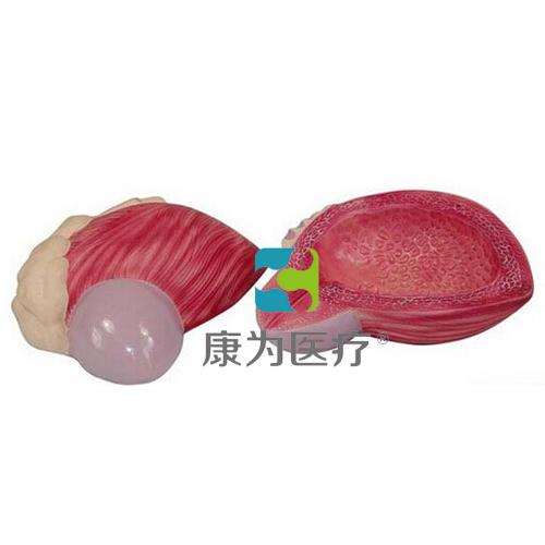 """""""万博体育app登陆医疗""""膀胱前列腺放大模型"""