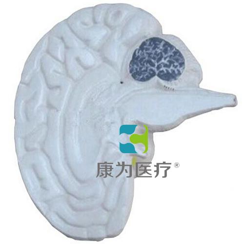"""""""万博体育app登陆医疗""""大脑剖面模型"""