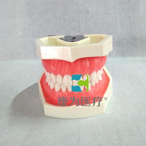 """""""万博体育app登陆医疗""""标准模型(28颗螺钉固定牙齿)"""