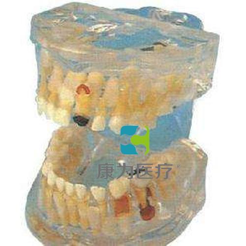 """""""康为医疗""""透明乳牙病理模型"""