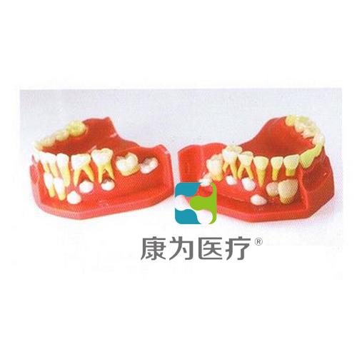 """""""万博体育app登陆医疗""""乳牙交替模型"""