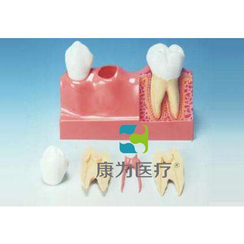 """""""康为医疗""""牙分解模型(4倍大)"""