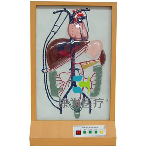 """""""康为医疗""""门静脉侧支循环电动模型"""
