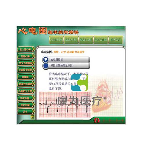 """""""万博体育app登陆医疗""""新版心电图教学软件---【心电图临床实例解读】"""