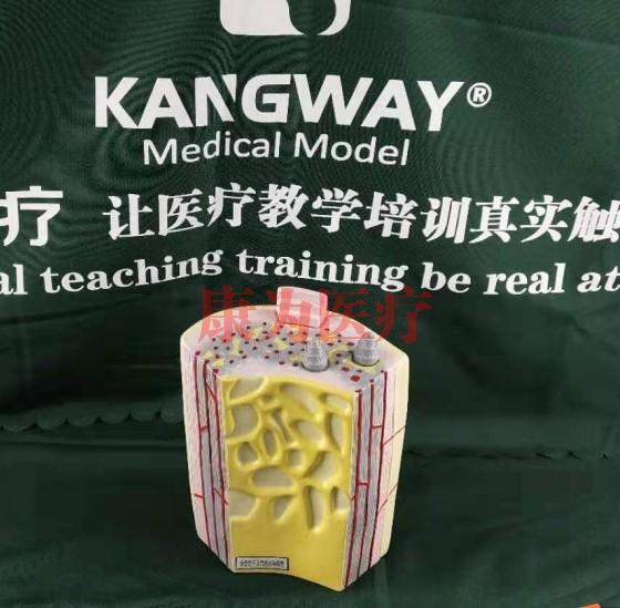 """""""康为医疗""""长骨骨干及骨板结构"""