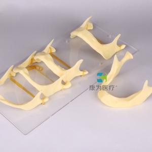"""""""康为医疗""""下颌骨发育模型"""