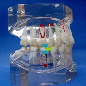 """""""康为医疗""""透明牙体病理模型"""
