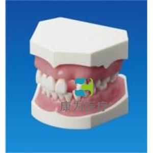 """""""康为医疗""""牙周松动牙固定实习模型"""