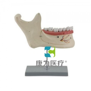 """""""康为医疗""""下颌恒牙解剖(自然大)"""