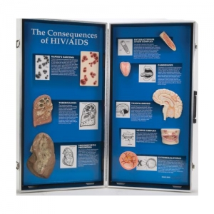 德国3B Scientific®HIV/AIDS后果的3D展示
