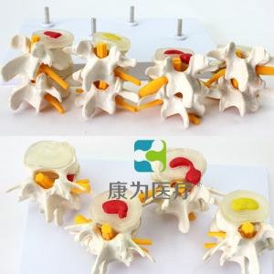 人体骨胳模型,全身骨胳模型,人体骨骼3d模型,医用人体骨骼模型,医用人体模型